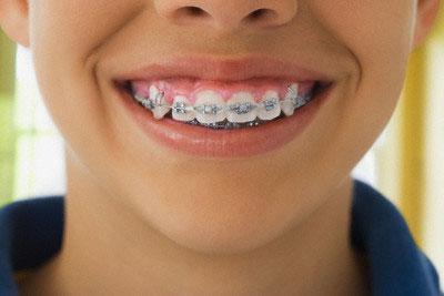 Orthodontic Treatment Braces